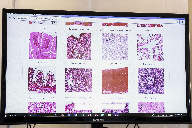 Imágenes de tejidos humanos, vistos con un microscopio virtual.