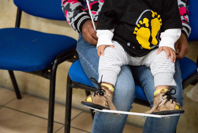 Paciente infantil cargado por su madre durante la celebración del Día Mundial del Pie Equino Varo, que se conmemoró el pasado 3 de junio.