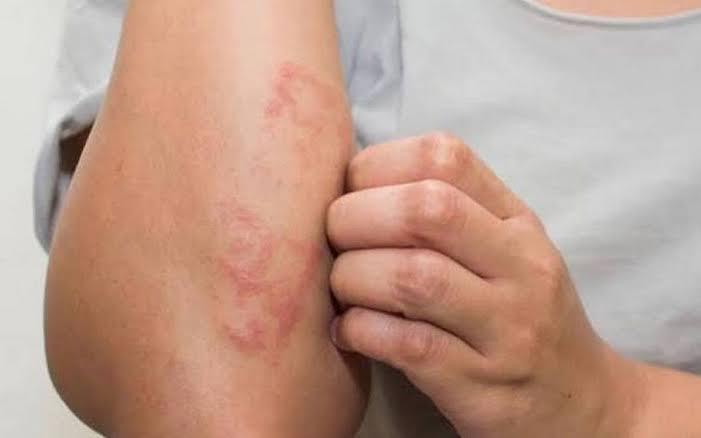Ya hay registrados casos de personas resistentes a medicamentos